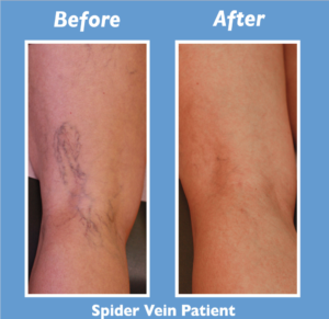 Albuquerque-Spider-Vein-Before-After